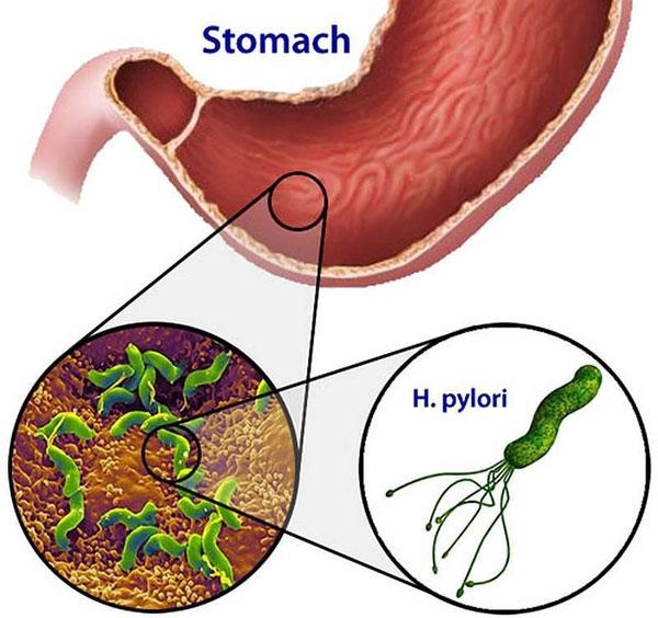 Khi lây nhiễm, Hp khó diệt và tồn tại dai dẳng trong dạ dày 1