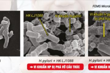 Giải pháp mới hỗ trợ đẩy lùi vi khuẩn HP kháng thuốc